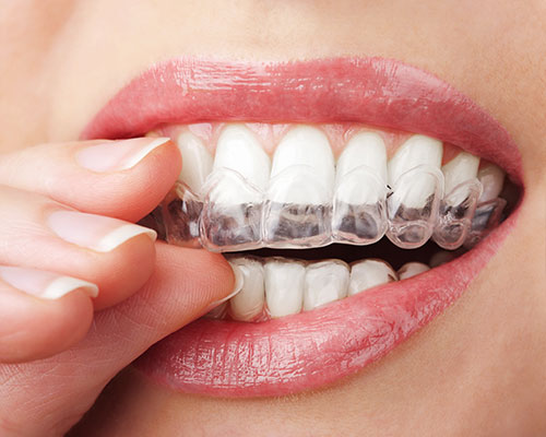 orthocpaps-clear-aligners-removable-surrey-quays